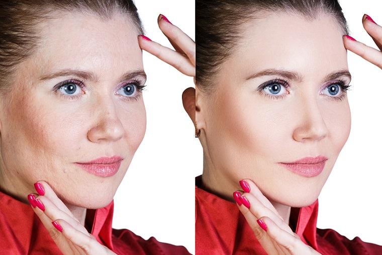dermatologia y estetica manchas