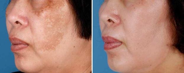 dermatologia y estetica