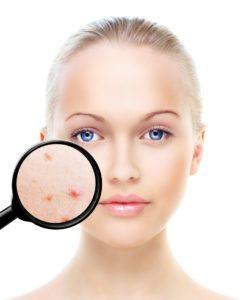 signos estres piel clinica eguren