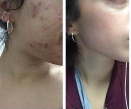 mitos acne debes saber
