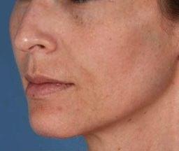 ZO Skin Health clinica estética Eguren