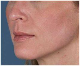 ZO Skin Health clinica dermatologica Eguren