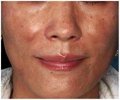 ZO Skin Health para cuidarte en esta primavera