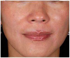 ZO Skin Health para la proxima primavera
