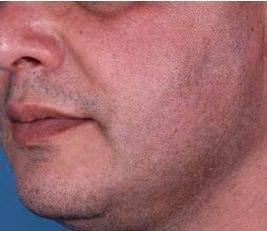 tratamiento estetica hombres - dermatologo madrid