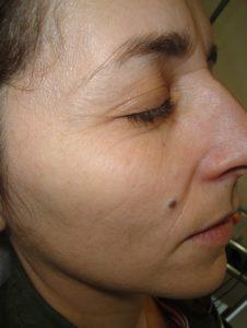 por qué pueden ayudarte los tratamientos de dermatología estética