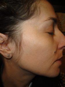 por qué pueden ayudarte los tratamientos de dermatología estética. 2.