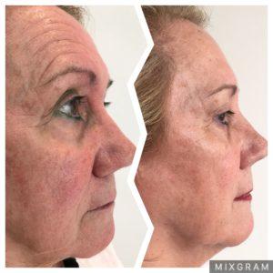 botox clinica dermatologia estetica