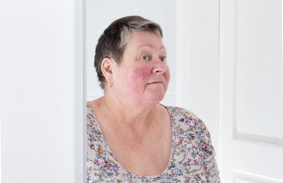 Clínica de Dermatología y Estética tratamiento Rosácea facial