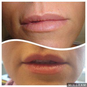 relleno de labios clinica estetica