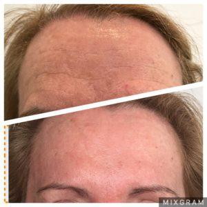 clinica dermatologica botox frente