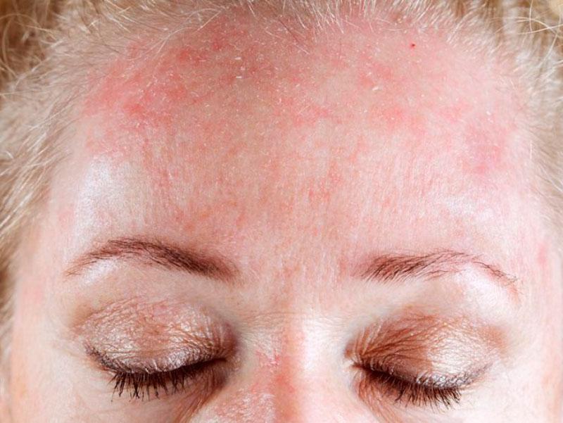 Dermatitis atópica blog Eguren