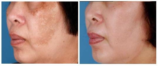 Dermatologa en Madrid Dra. Eguren