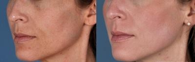 Evita las arrugas con ZO Skin Health