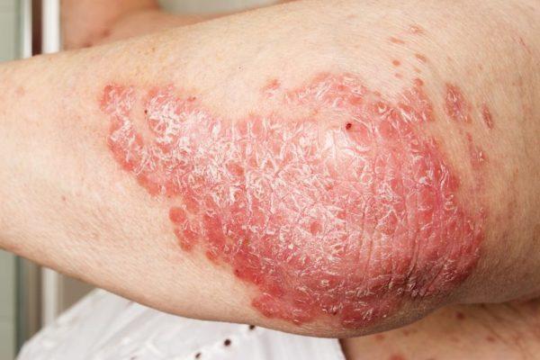 controla psoriasis dermatóloga en Madrid
