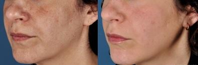 Elimina las manchas de tu piel con ZO Health Skin