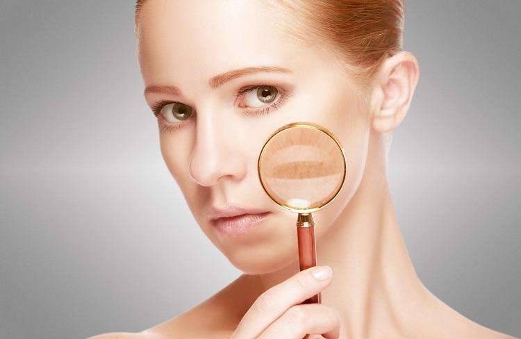 dermatologa en madrid manchas