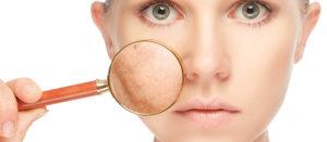 mejores tratamiento para quitar manchas de la cara