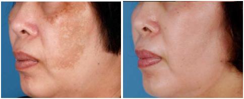 Peeling químico para quitar manchas en la piel