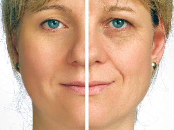 Clínica dermatológica con la Dra. Erugen, tu dermatóloga en Madrid