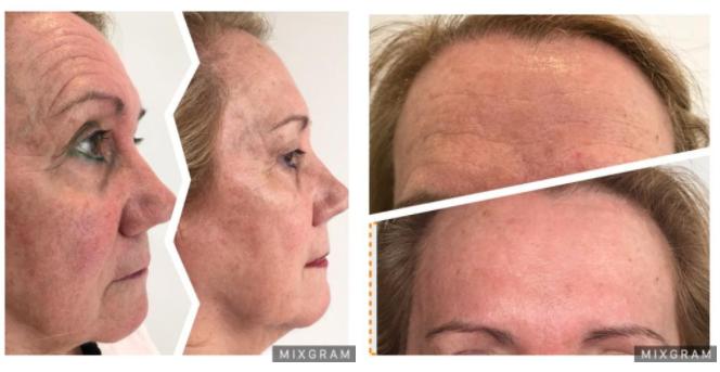 Tratamientos rejuvenecedores para el brillo de tu piel con tu dermatóloga en Madrid