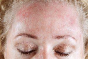eccemas dermatitis