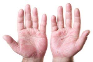 dermatitis atopica eccemas mano