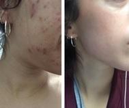 tratamiento del acné