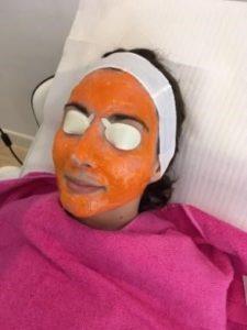 tratamiento para el acné con Kleresca - Eguren, dermatólogo en Madrid