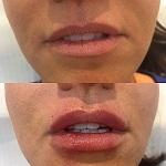 rejuvenecer la piel con rellenos con ácido hialurónico - Eguren - Dermatólogo en Madrid