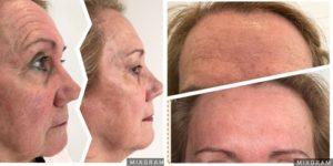 rejuvenecer la piel con bótox - Dermatólogo en Madrid - Clínica Eguren