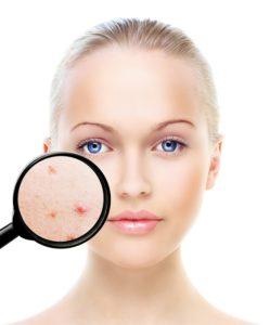 Di adiós al acné - Tratamiento del acné - Clínica Eguren