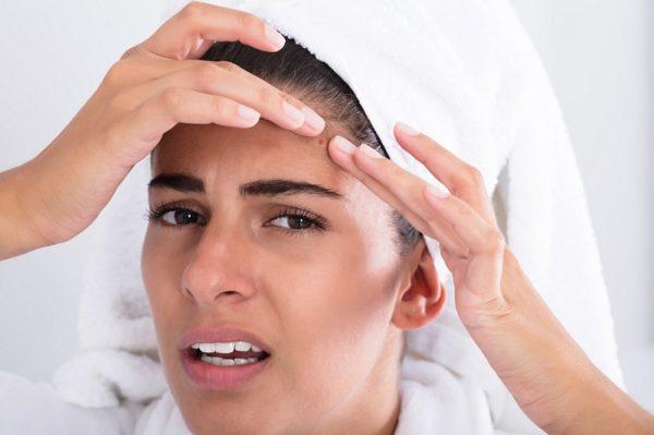 tratamiento del acne efectivo clinica eguren
