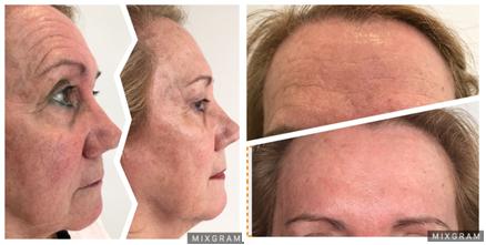 dermatología estética antes y después - clínica eguren