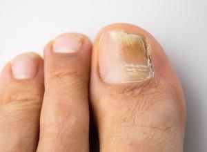dermatología del pie