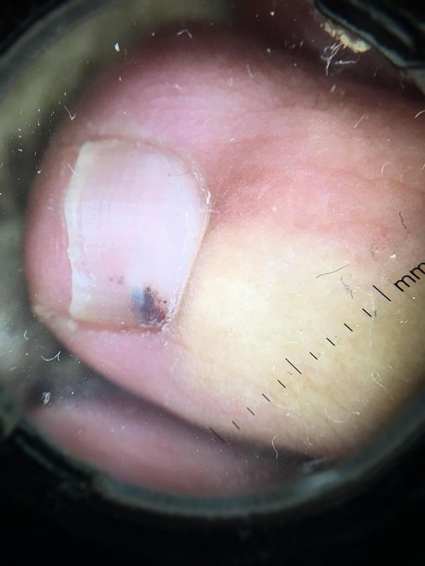 dermatología del pie, consecuencias
