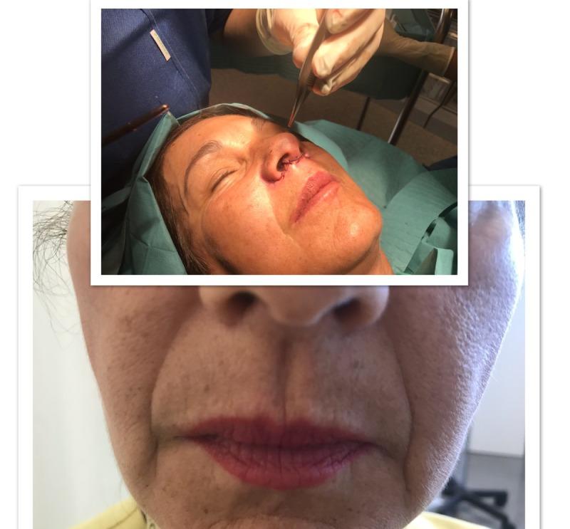 lip lift lifting de labios