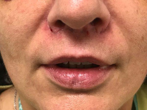 lip-lift-paciente-resultado