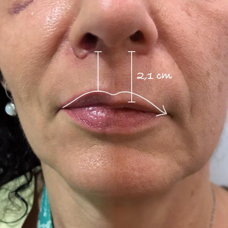 Increíble mejoría tras lip-lifting