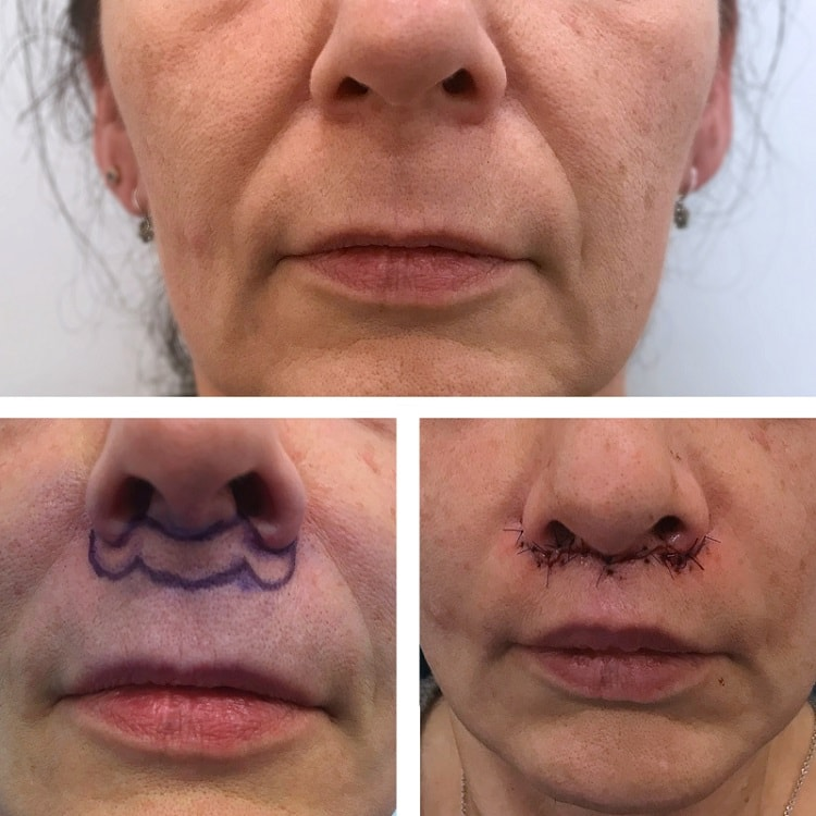 Proceso que se lleva a cabo en el Lip-Lifting