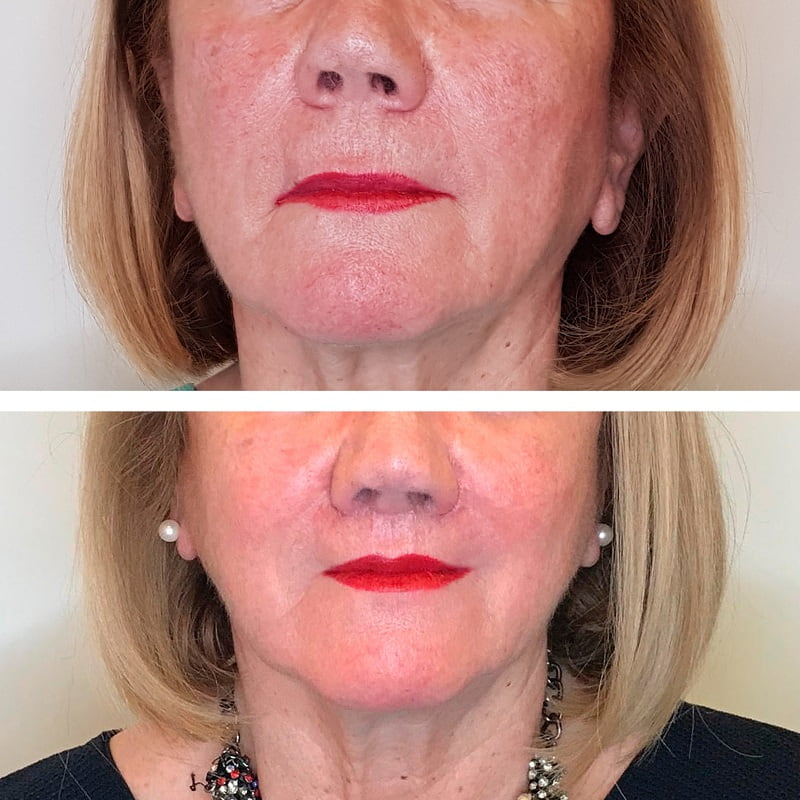 Los mejores resultados y el antes y después tras el Lip-Lifting