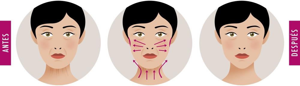 Lifting Facial Cuello