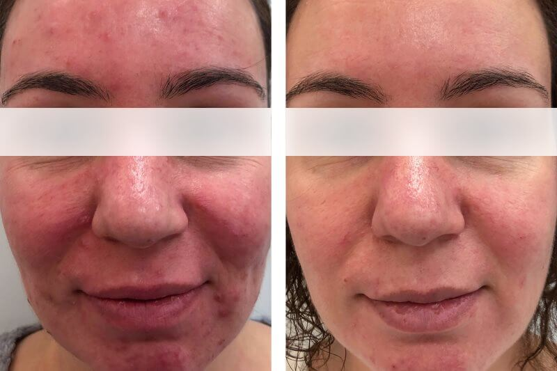 Rosacea antes y despues