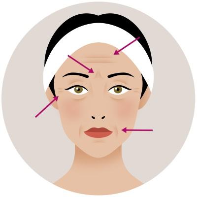 Botox Completo