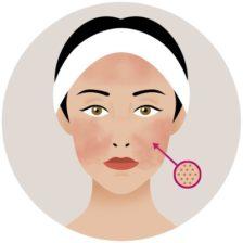 Klenesca acné o rosácea