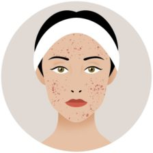 Láser CO2 cicatrices acné