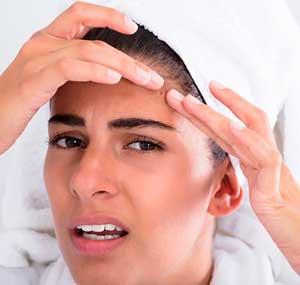 cómo afecta el acné
