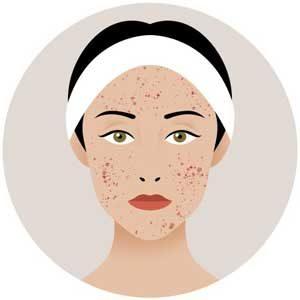 problemas con el acné