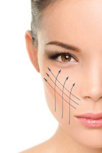 tratamiento de hilos tensores contra flacidez