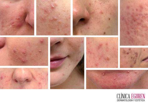 el hiperandrogenismo como base del acné de la mujer adulta